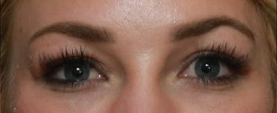 Upper Blepharoplasty Gallery - Patient 6155684 - Image 3