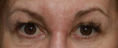 Upper Blepharoplasty Gallery - Patient 6155685 - Image 4