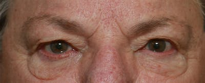 Upper Blepharoplasty Gallery - Patient 6155686 - Image 5