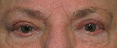 Upper Blepharoplasty Gallery - Patient 6155686 - Image 2