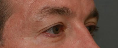 Upper Blepharoplasty Gallery - Patient 6155687 - Image 6