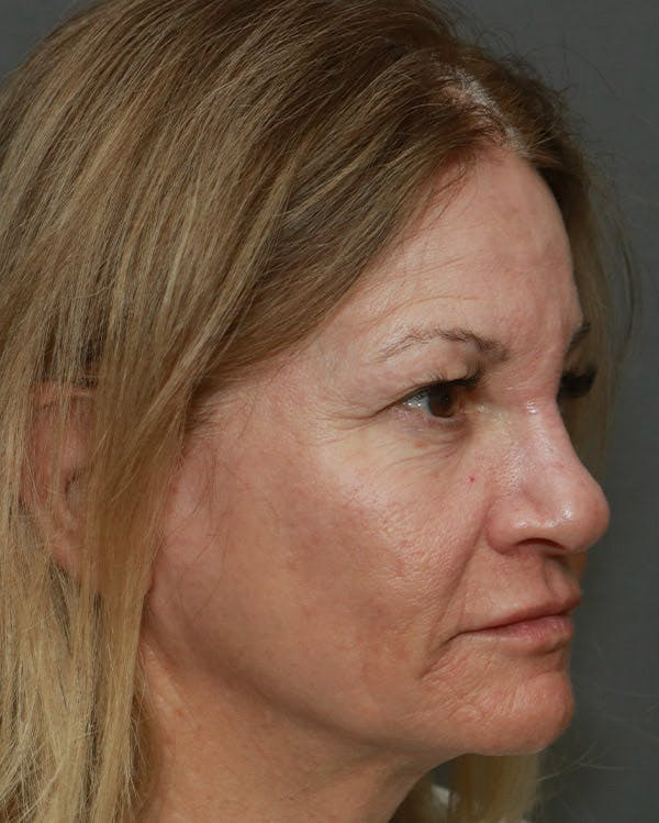 Browlift Gallery - Patient 6156181 - Image 3