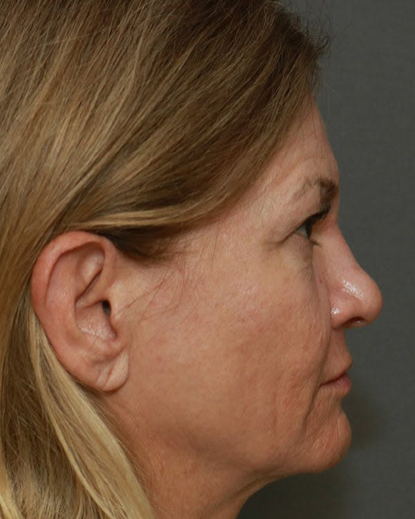 Browlift Gallery - Patient 6156181 - Image 5