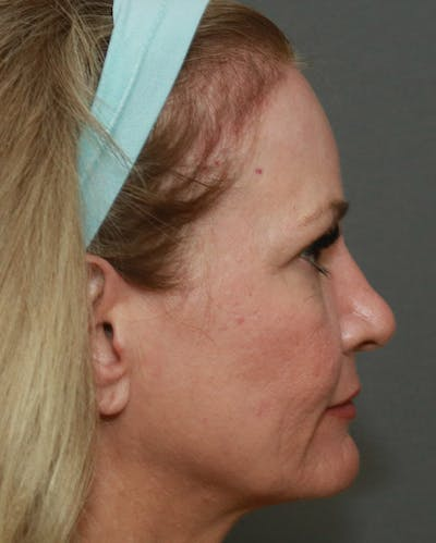 Browlift Gallery - Patient 6156181 - Image 6