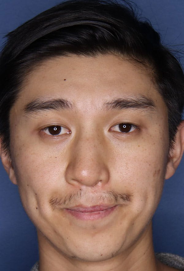 Revision Rhinoplasty Gallery - Patient 6279570 - Image 1