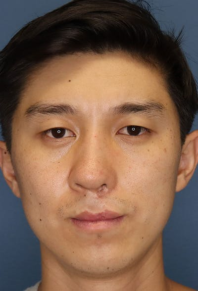 Revision Rhinoplasty Gallery - Patient 6279570 - Image 2