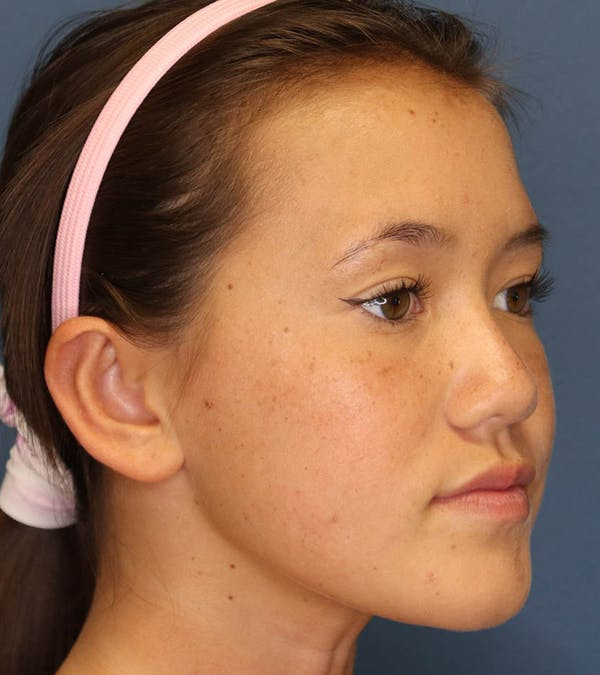 Otoplasty Gallery - Patient 6610804 - Image 4