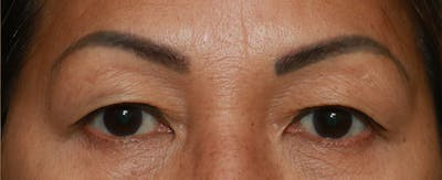 Upper Blepharoplasty Gallery - Patient 7303604 - Image 7