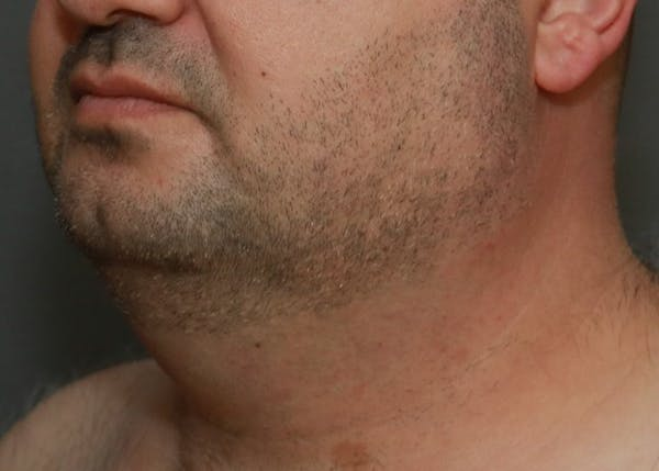 Submental Liposuction Gallery - Patient 7303665 - Image 1