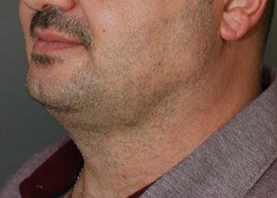 Submental Liposuction Gallery - Patient 7303665 - Image 2