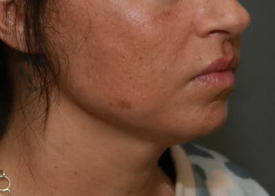 Submental Liposuction Gallery - Patient 7303666 - Image 1