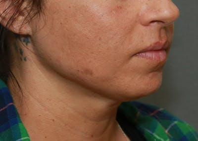 Submental Liposuction Gallery - Patient 7303666 - Image 2