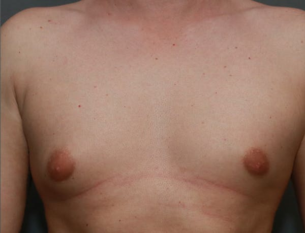 Gynecomastia Gallery - Patient 7329083 - Image 1