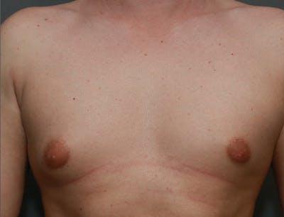 Gynecomastia Gallery - Patient 8284603 - Image 1