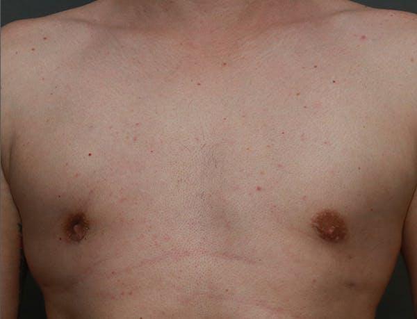 Gynecomastia Gallery - Patient 7329083 - Image 2