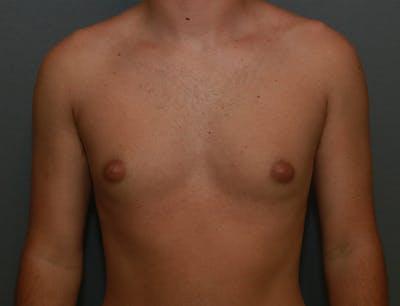 Gynecomastia Gallery - Patient 8284604 - Image 1