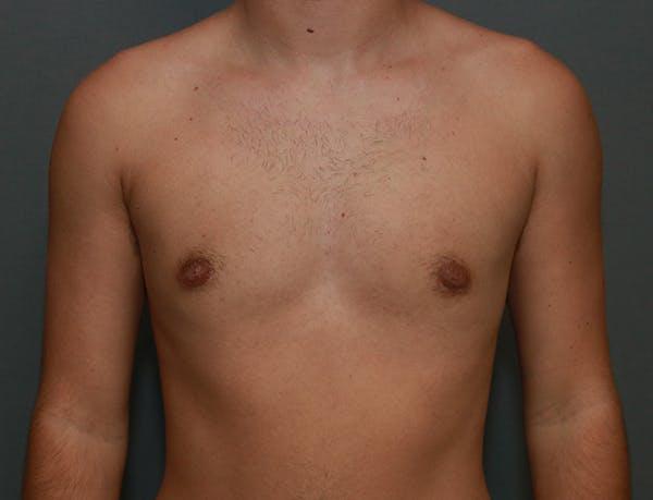 Gynecomastia Gallery - Patient 7329084 - Image 2