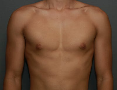 Gynecomastia Gallery - Patient 7329085 - Image 1