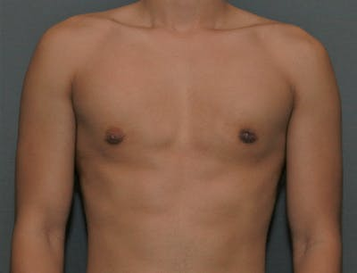 Gynecomastia Gallery - Patient 8284605 - Image 2
