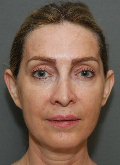 Facelift Gallery - Patient 7369037 - Image 1