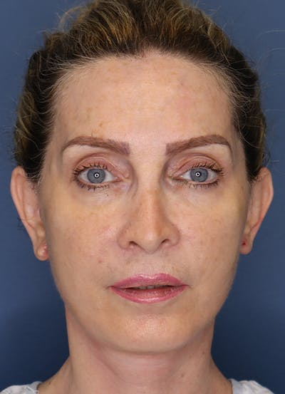 Facelift Gallery - Patient 7369037 - Image 2