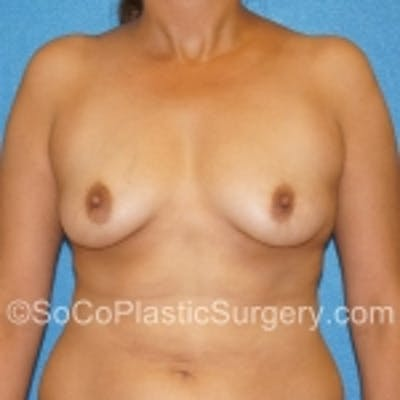 Breast Augmentation Gallery - Patient 7809554 - Image 1