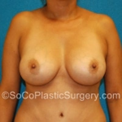 Breast Augmentation Gallery - Patient 7809554 - Image 2