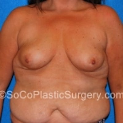 Breast Augmentation Gallery - Patient 7809555 - Image 1