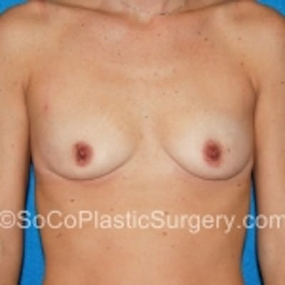 Breast Augmentation Gallery - Patient 7809569 - Image 1