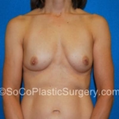 Breast Augmentation Gallery - Patient 7809585 - Image 1