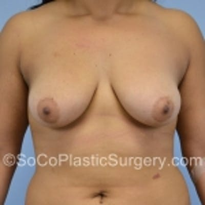Breast Augmentation Gallery - Patient 7809590 - Image 1