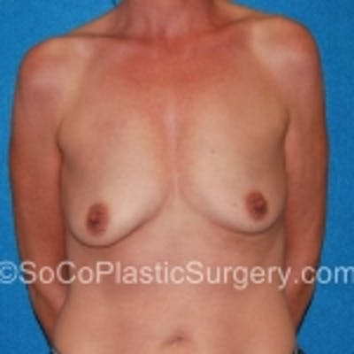 Breast Augmentation Gallery - Patient 7809606 - Image 1