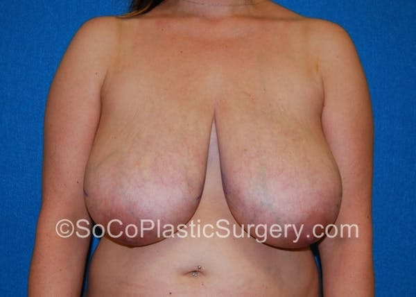 Breast Lift Gallery - Patient 8281894 - Image 1