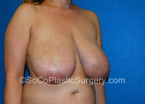 Breast Lift Gallery - Patient 8281894 - Image 3