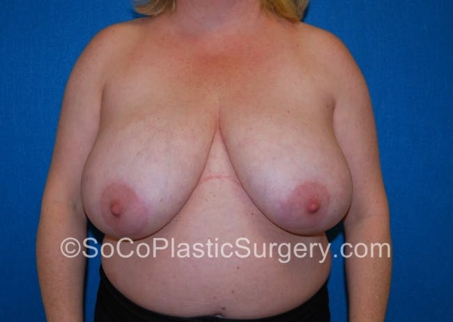 Breast Lift Gallery - Patient 8281899 - Image 1