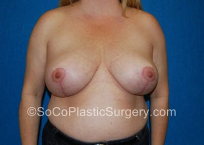 Breast Lift Gallery - Patient 8281899 - Image 2