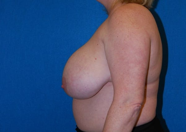 Breast Lift Gallery - Patient 8281899 - Image 3