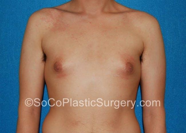 Gynecomastia Gallery - Patient 8284569 - Image 1