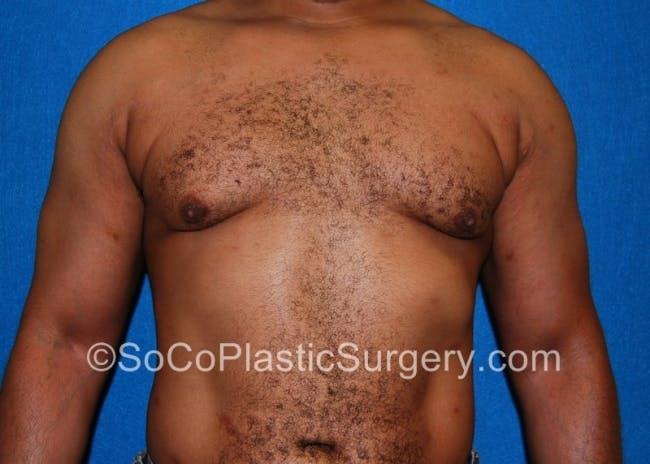 Gynecomastia Gallery - Patient 8284570 - Image 2
