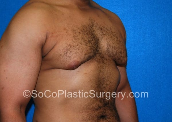 Gynecomastia Gallery - Patient 8284570 - Image 3