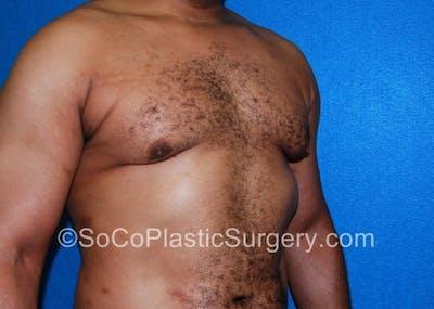 Gynecomastia Gallery - Patient 8284570 - Image 4