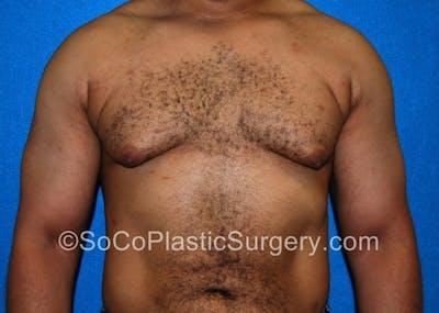 Gynecomastia Gallery - Patient 8284607 - Image 1