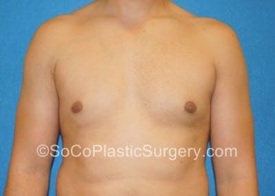 Gynecomastia Gallery - Patient 8284608 - Image 2
