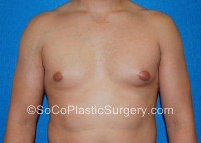 Gynecomastia Gallery - Patient 8284608 - Image 1