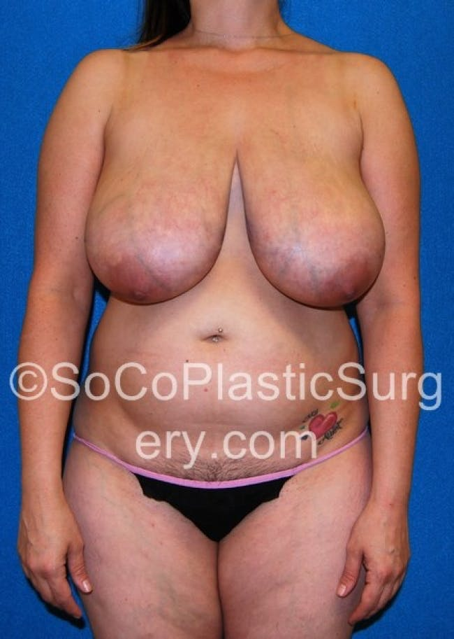 Mommy Makeover Gallery - Patient 8286133 - Image 1