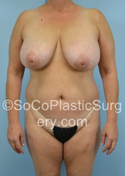 Mommy Makeover Gallery - Patient 8286135 - Image 1