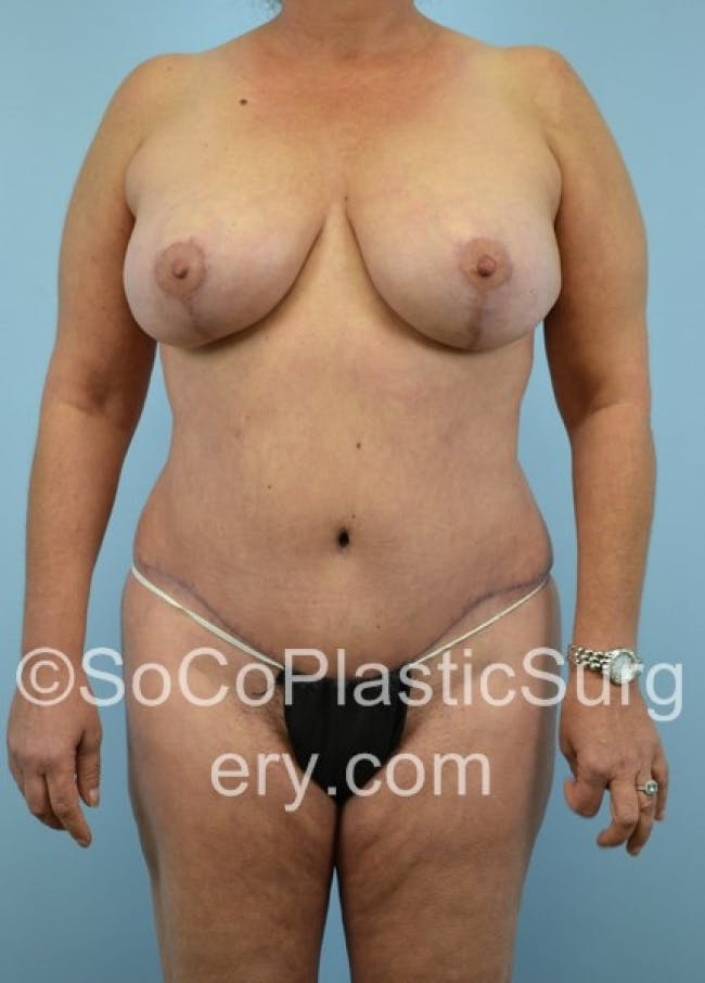 Mommy Makeover Gallery - Patient 8286135 - Image 2