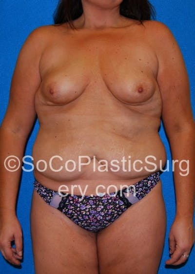 Mommy Makeover Gallery - Patient 8286136 - Image 1