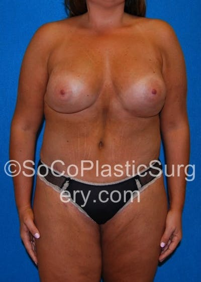 Mommy Makeover Gallery - Patient 8286136 - Image 2