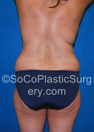 Tummy Tuck Gallery - Patient 8286183 - Image 1